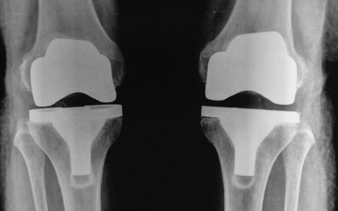 """E' possibile un """"rigetto"""" nelle protesi di ginocchio?"""