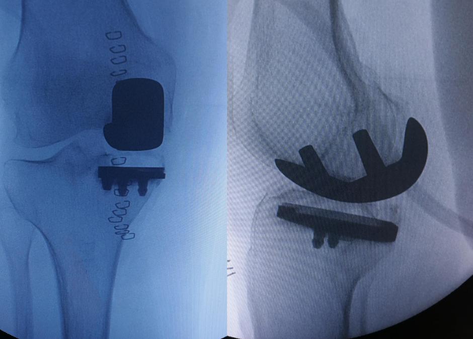 Quando un piccolo pezzo di ginocchio muore, cos'è la osteonecrosi
