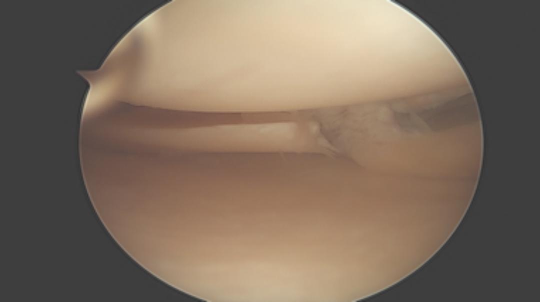 Lesione meniscale: quanto menisco togliere?