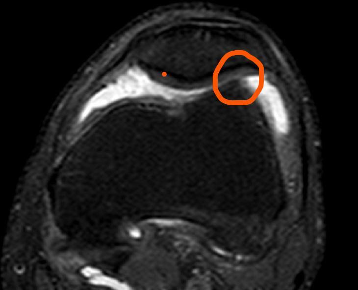 artrosi rotula