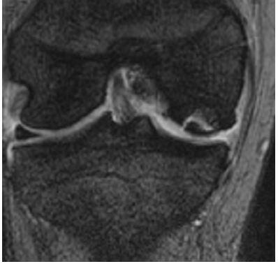 osteonecrosi ginocchio Di Feo